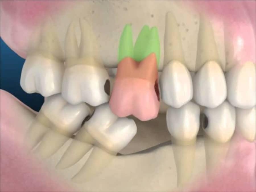 Consecuencias de la pérdida de una pieza dental.