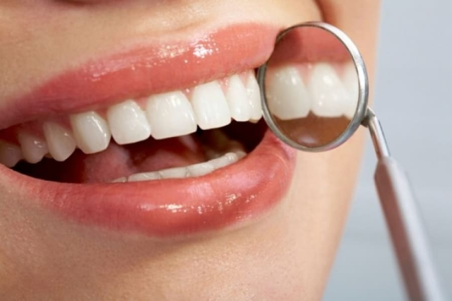 Soluciones estéticas para tener una bonita sonrisa.