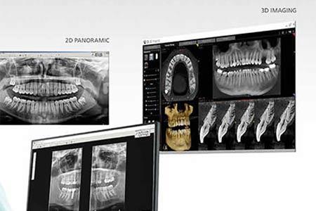 Aplicaciones dentales del scanner 3D en diagnósticos de problemas dentales.