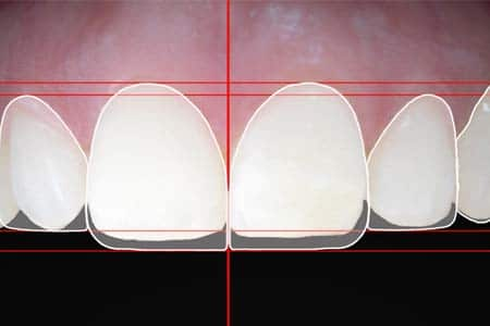 Fotografía digital para el diagnóstico y seguimiento de problemas dentales.
